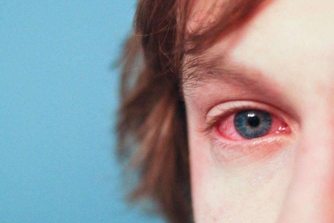 Бактериальный конъюнктивит: лечение у детей, симптомы, как отличить от вирусного заболевания глаз