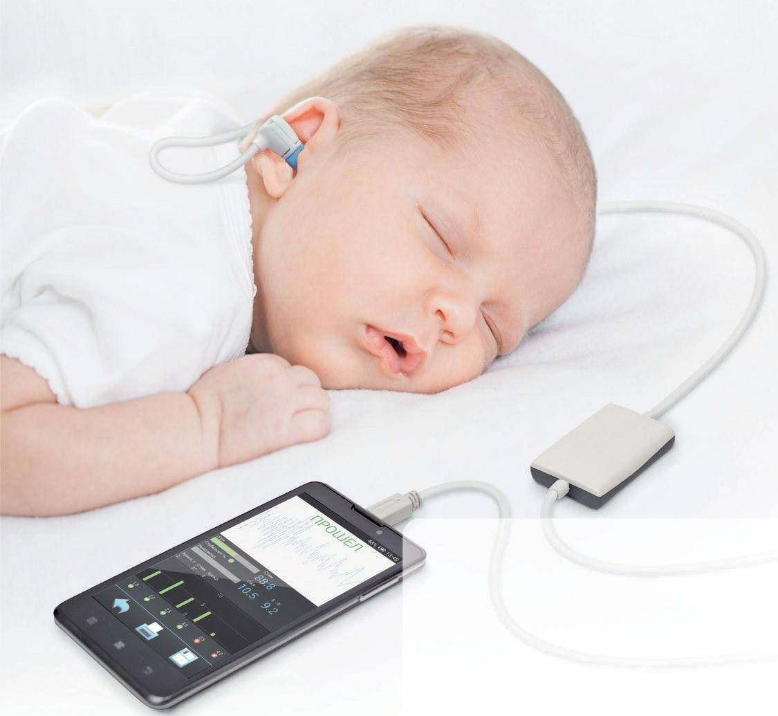 Аудиологический скрининг новорожденных, сделать аудиологическое обследование в москве