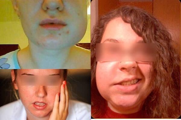Лимфангиома у детей: суть заболевания, причины и симптомы, классификация, диагностика и лечение