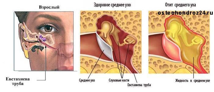 Средний отит у детей, как лечить воспаление среднего уха у ребенка?