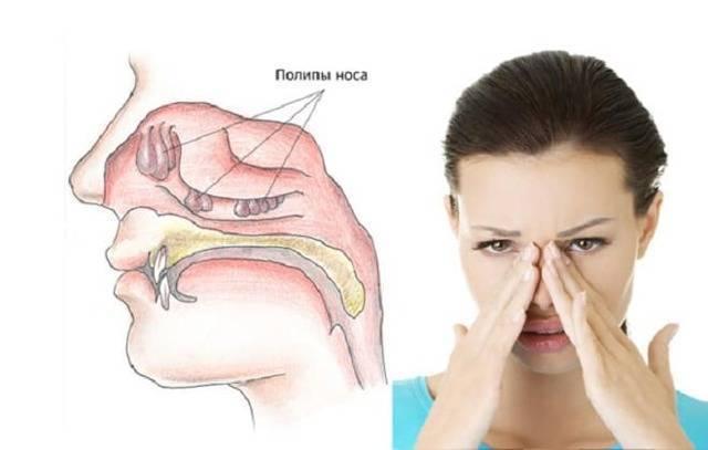 Полипы у ребенка симптомы лечение в носу