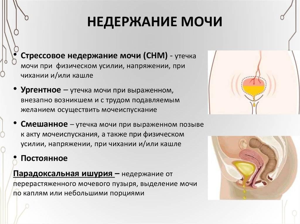 Цистит после секса у женщин симптомы и лечение. посткоитальный цистит.