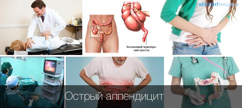 Аппендицит: симптомы у детей – как распознать приступ
