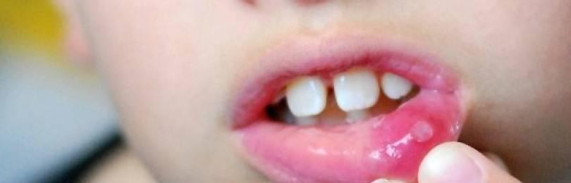 Чем лечить стоматит у детей во рту: афтозный стоматит; герпетический стоматит; грибковый стоматит. причины, симптомы  и профилактика стоматита у ребёнка
