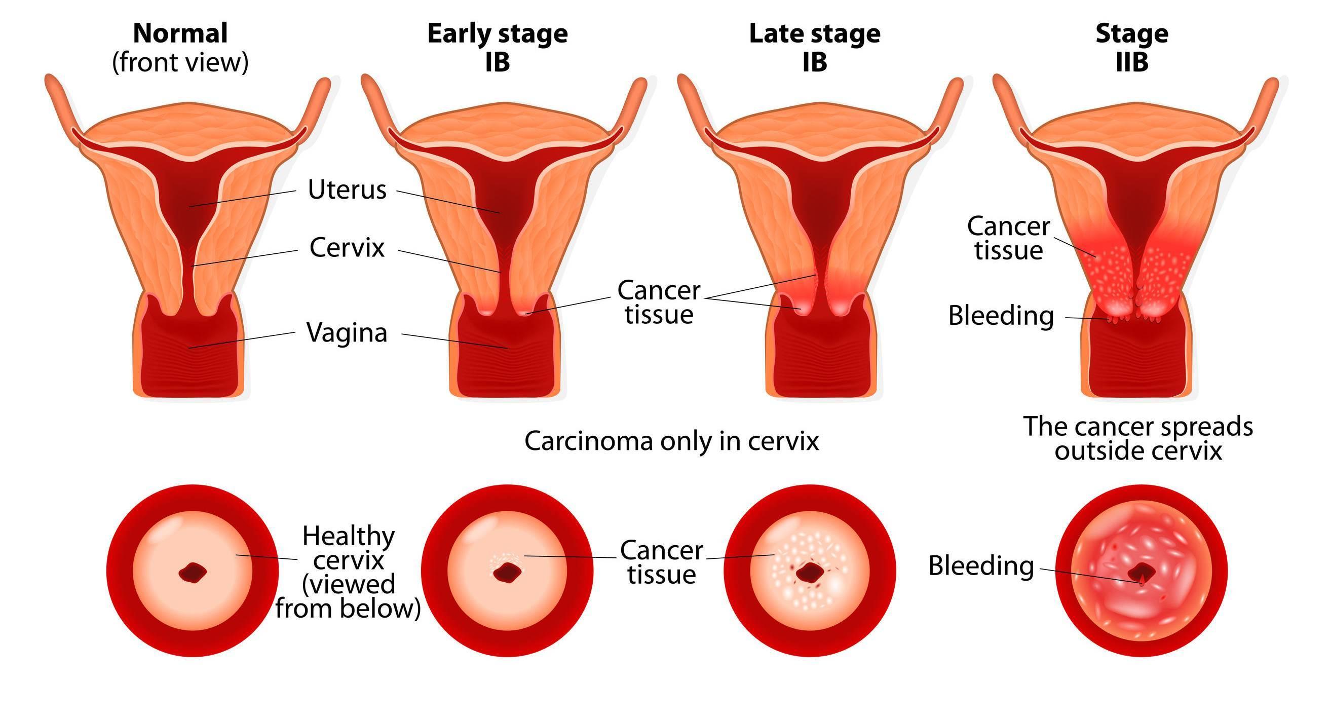 После чистки матки сколько идет кровь, что нельзя делать? - народная медицина