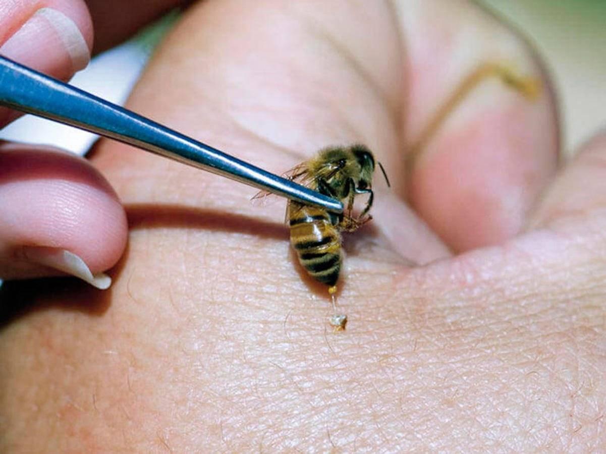 «кусачая» дача: что делать, если ребенок пострадал от укусов клеща, пчелы, комаров, ядовитого паука или змеи