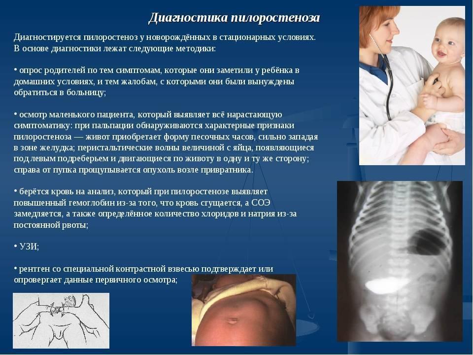 Пилоростеноз у новорожденных: симптоматика диагностика и лечение / mama66.ru