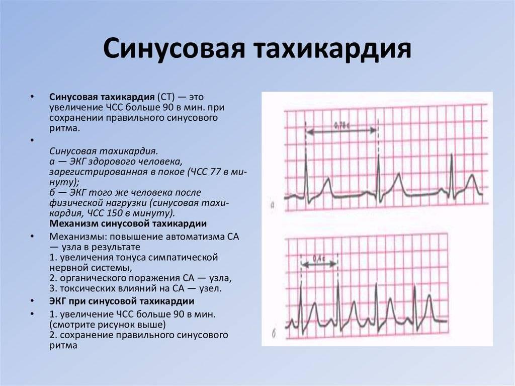 Пароксизмальная и синусовая тахикардия у ребенка: причины, лечение