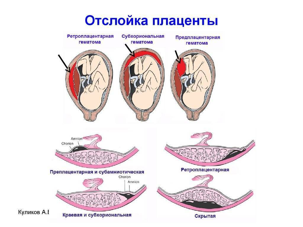 Причины и последствия отслойки плодного яйца на ранних сроках беременности, тактика лечения. отслойка плодного яйца: причины и способы избежания
