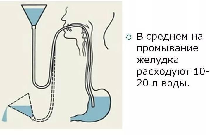 Как правильно промыть желудок ребенку в домашних условиях. промывание желудка у детей