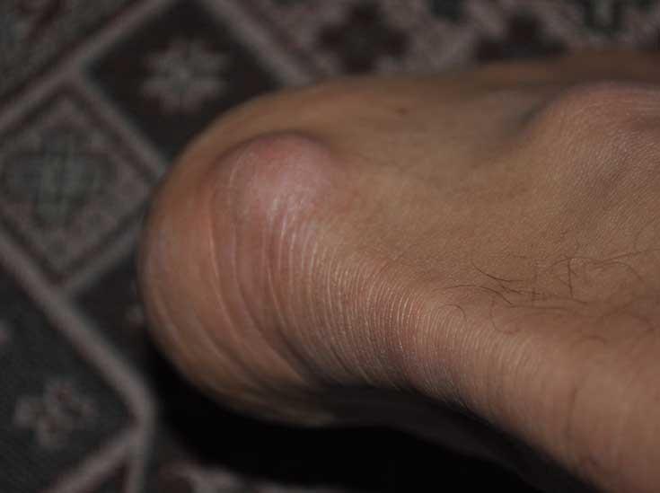 Фото, причины возникновения и лечение гигромы на ноге у взрослого и ребенка
