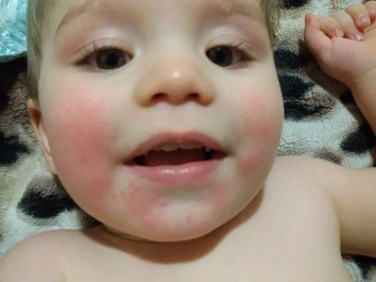Как предотвратить раздражение от слюней у ребенка. причины появления сыпи у ребенка на подбородке: раздражение от слюней, аллергия и другие проблемы красный шершавый подбородок у ребенка