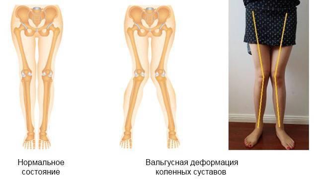 Вальгусная деформация коленных суставов у детей и взрослых - твой суставчик