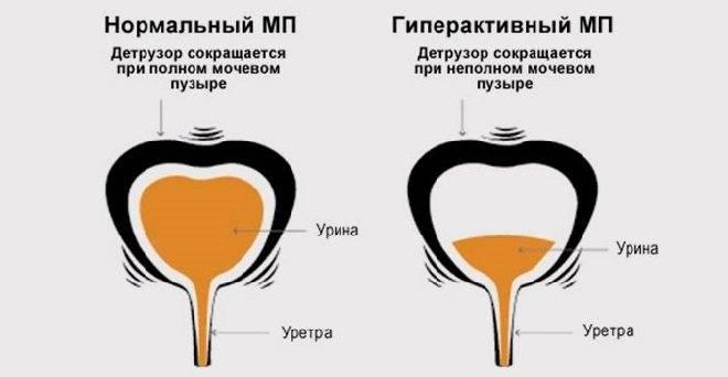 Что такое дисфункция мочевого пузыря у детей?