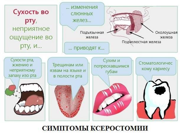 Сухость во рту у детей - причины дискомфорта, способы лечение ксеростомии
