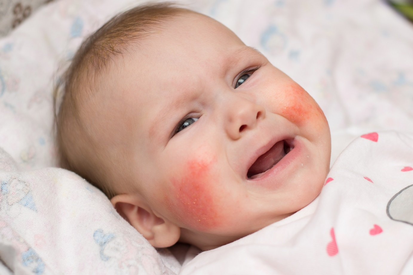 Аллергия, что пить при аллергии   от аллергии детям до года   метки: годовалый