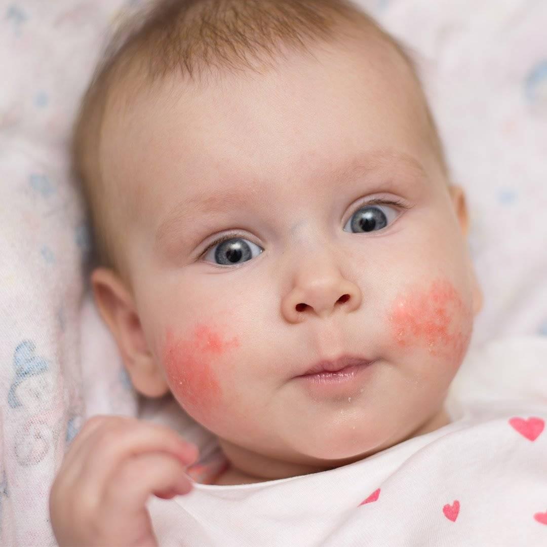 Что такое герпес в крови у новорожденных. герпес у новорожденного ребенка и грудничка до года: симптомы и способы лечения. опасен ли герпес для грудничка