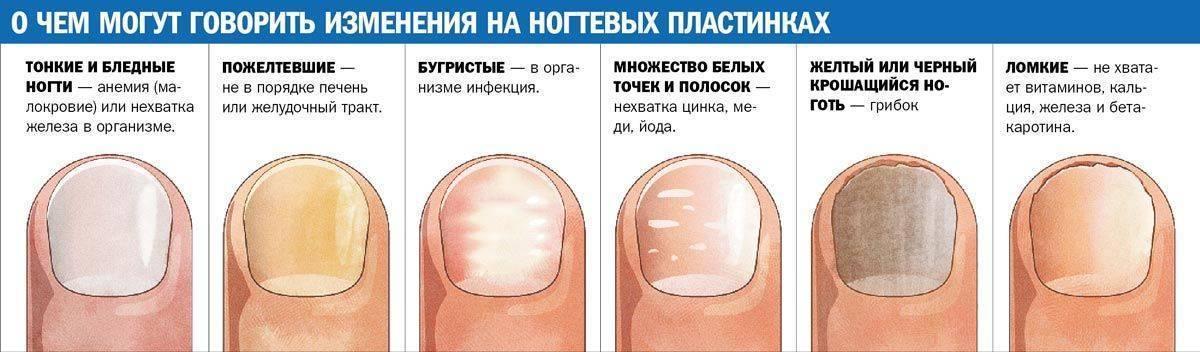 Вогнутые ногти на ногах у ребенка: причины и лечение