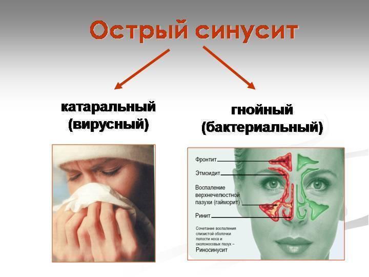Острый синусит: симптомы и лечение у детей в домашних условиях, что это такое