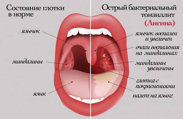 Как выглядит горло здорового ребенка фото - ekzemat