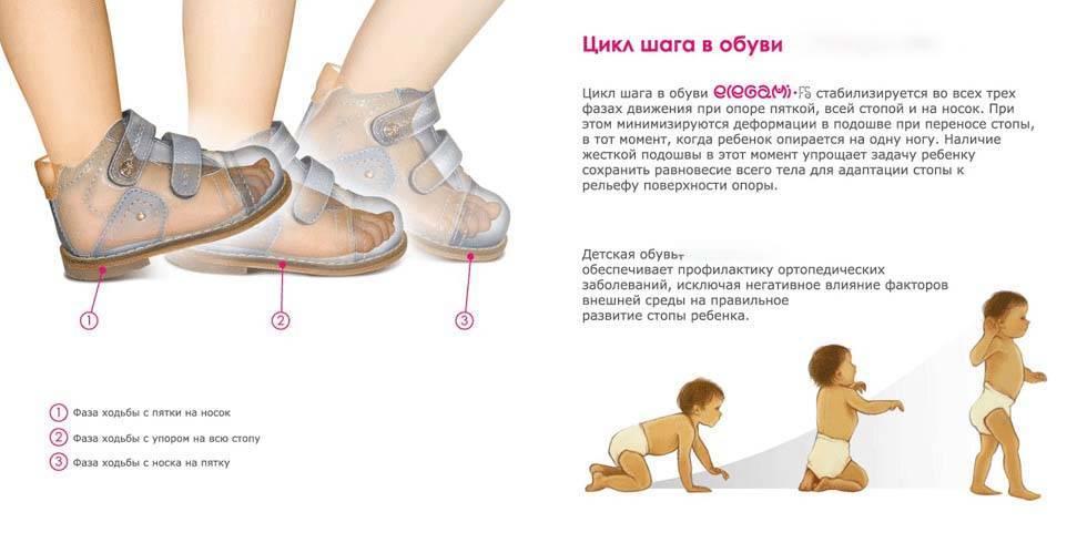 Причины по которым ребенок ходит на носочках (комаровский)