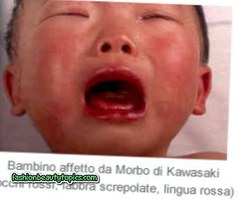 Болезнь кавасаки: описание, диагностика, лечение и прогноз болезнь кавасаки