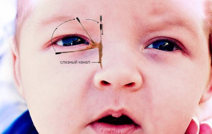 Дакриоцистит у новорожденных: симптомы, диагностика, массаж и виды лечения