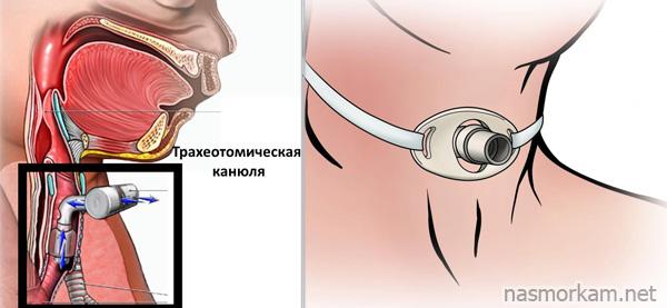 Отёк гортани у ребёнка лечение