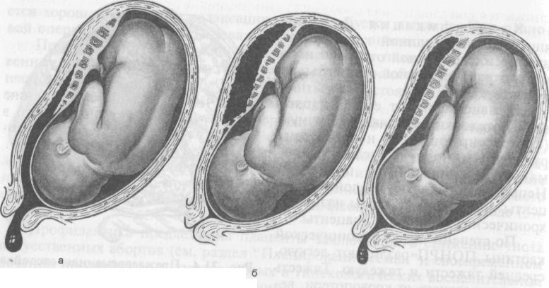 О приращении плаценты, полном истинном и ложном: что для них характерно, каковы причины аномалии?