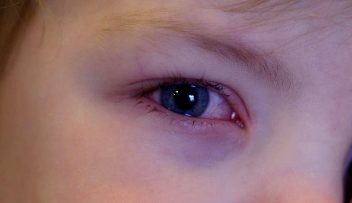 Три эффективных способа вылечить конъюнктивит у детей