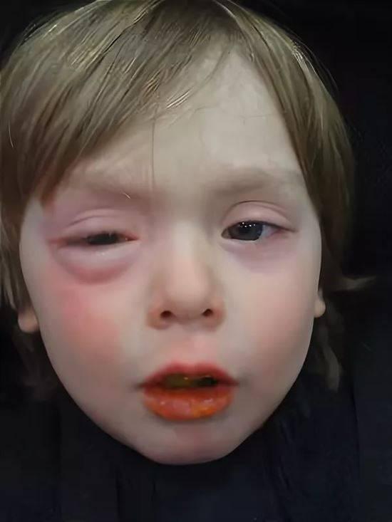 Аллергия на шерсть и шерстяные вещи у ребенка