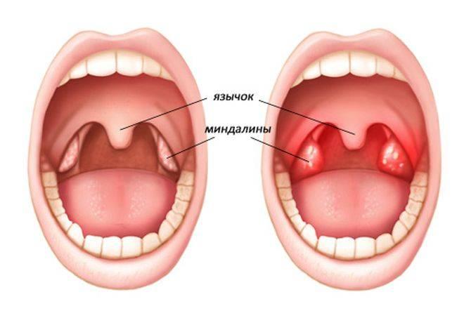 Как выглядит здоровое и больное красное горло у ребенка, какими в норме должны быть миндалины? - врач 24/7