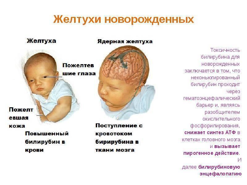 Причины возникновения желтушки у новорожденного — топотушки
