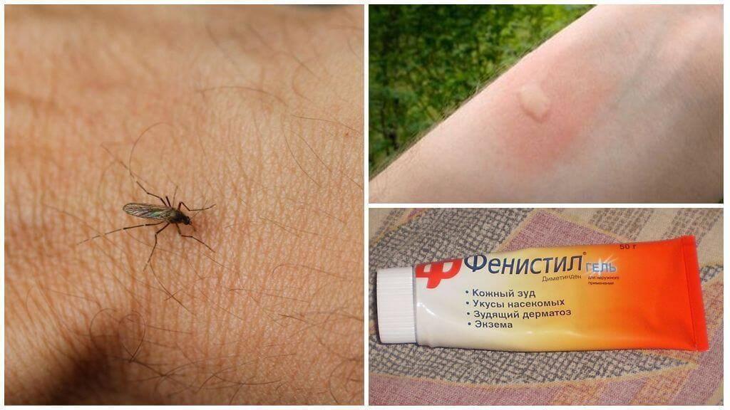 Чем помазать ребенку укусы комаров