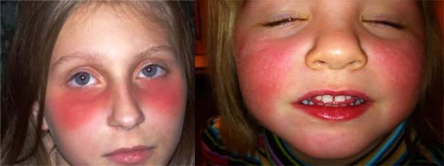 Как можно убрать синяки под глазами у ребенка? почему у ребенка появляются синяки под глазами: причины и способы лечения