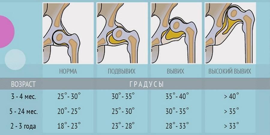 Узи тазобедренных суставов для новорожденных и грудничков: нормы и расшифровка показателей - все о суставах