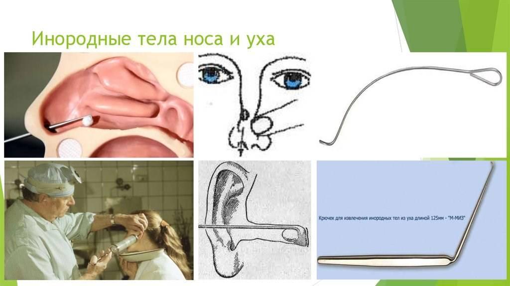 Инородное тело в носу у ребенка: симптомы и способы извлечения