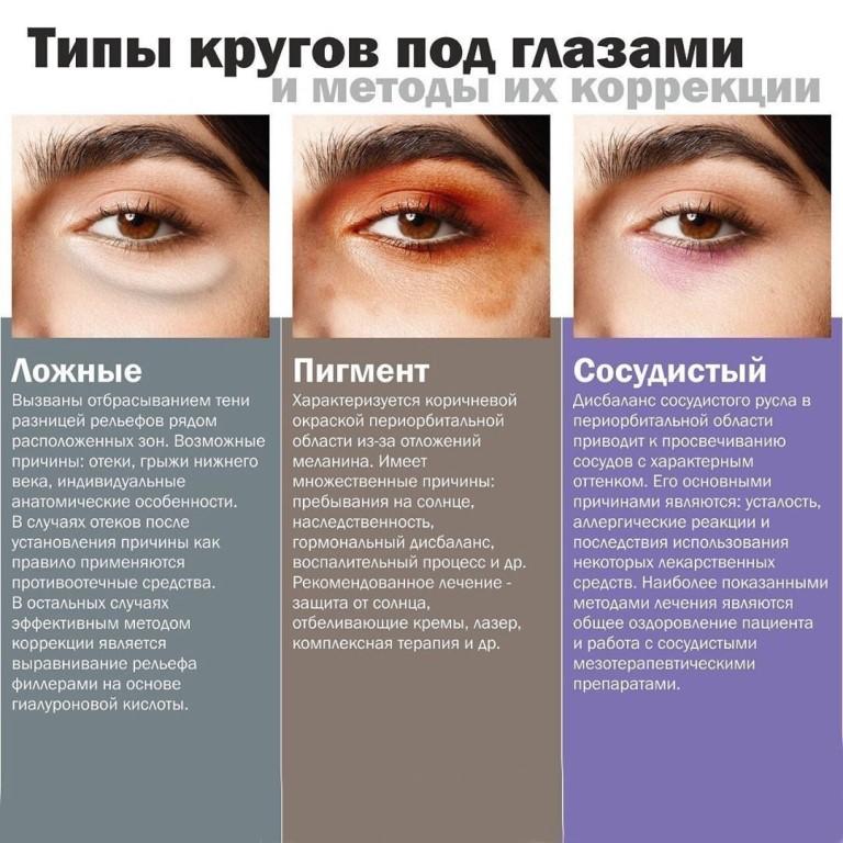 Тёмные круги под глазами у ребёнка: причины, лечение oculistic.ru тёмные круги под глазами у ребёнка: причины, лечение