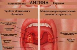 Стоматит в горле у детей и взрослых
