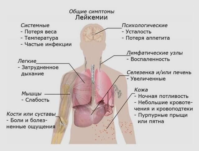 Лейкоз — симптомы у детей