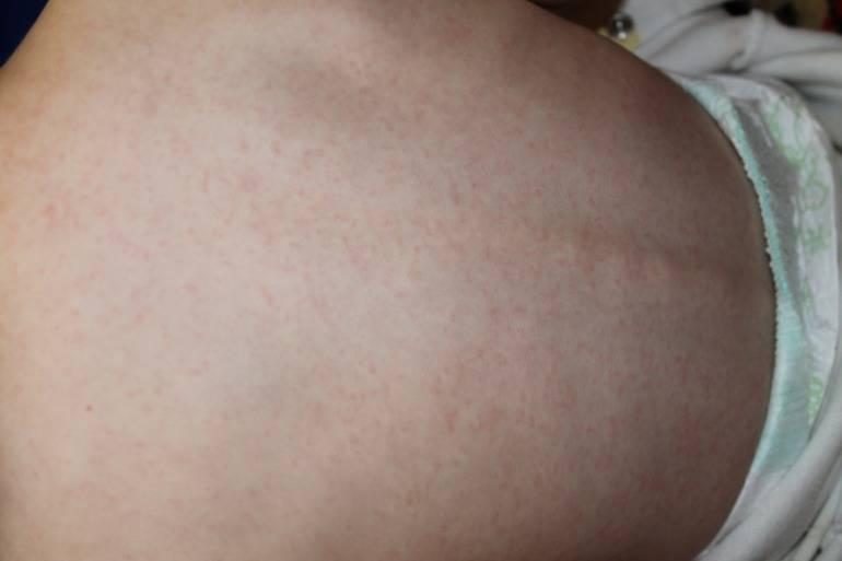 ???? розеола у детей: симптомы с фото сыпи, лечение трехдневной лихорадки, профилактика | konstruktor-diety.ru