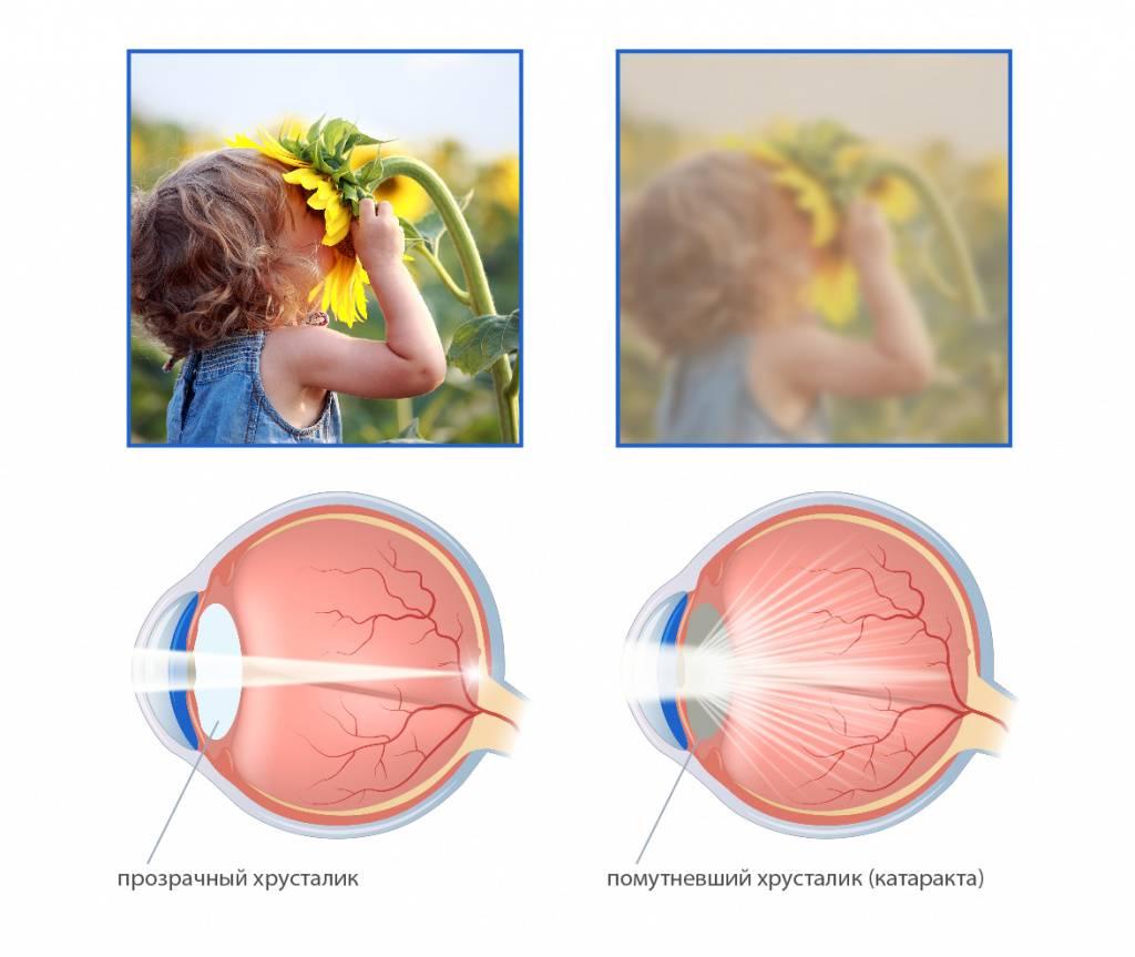 Причины, лечение и профилактика врожденной дальнозоркости у детей до года