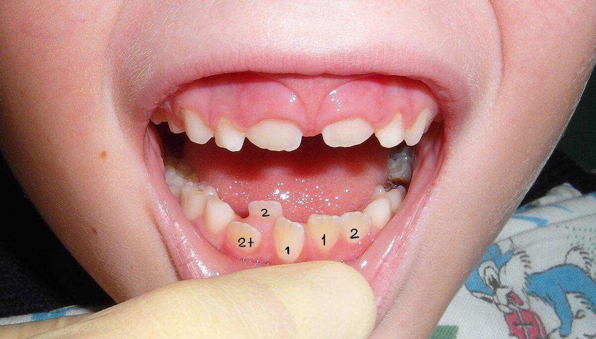 Как исправить кривые зубы у взрослого без брекетов или виниров навсегда?  || орел