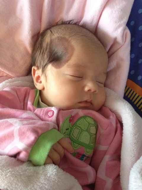 Пигментные пятна у детей - фото, причины и лечение