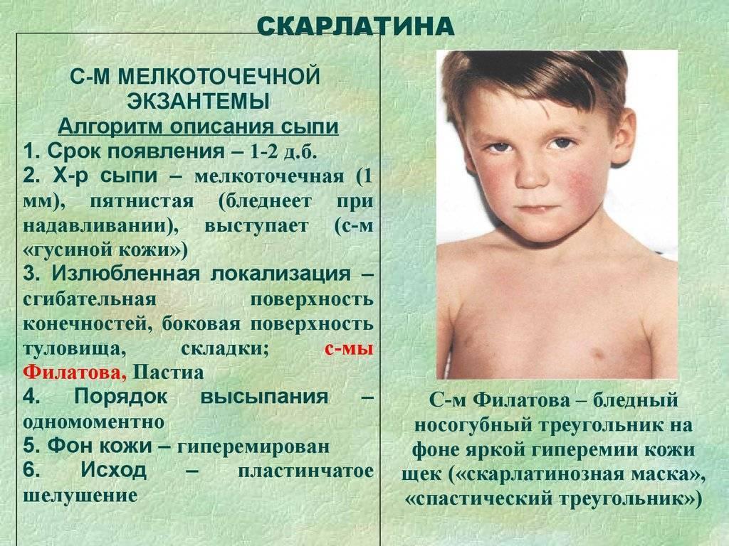 Корь — симптомы у детей, фото, лечение и профилактика, препараты
