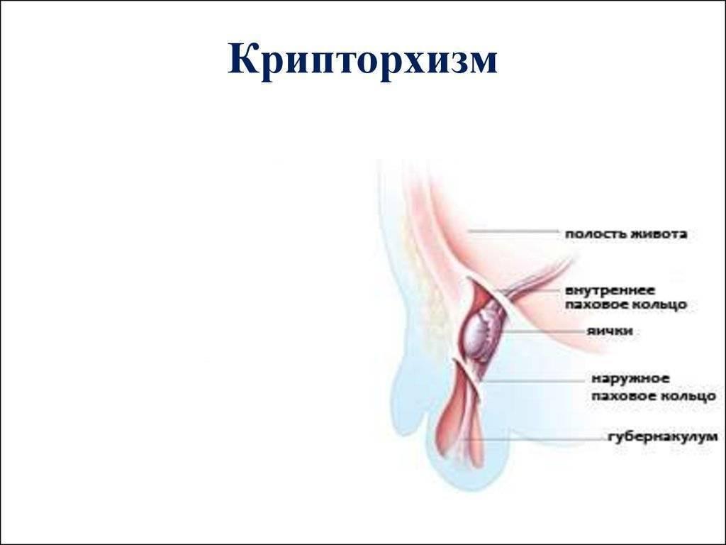 Крипторхизм у детей (18 фото): лечение неопущения яичек мальчиков, операция, двусторонняя и ложная форма