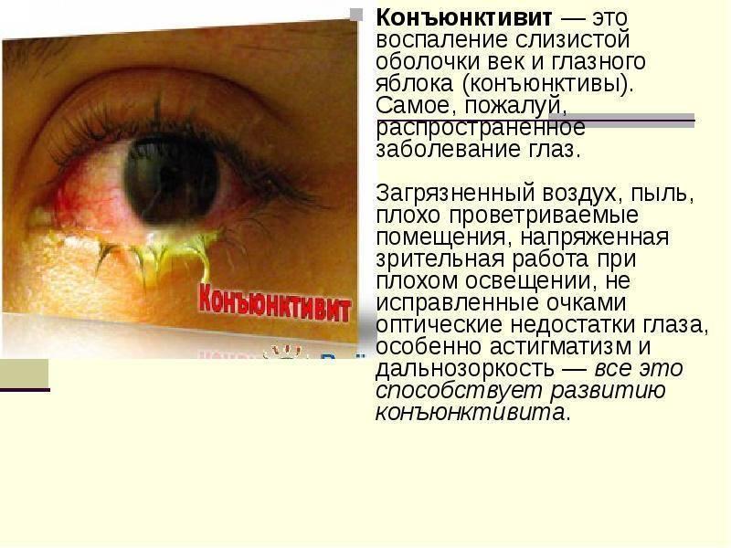 Конъюнктивит у детей: симптомы и лечение
