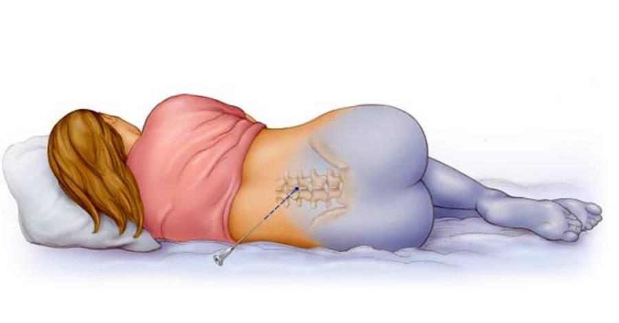Боли и проблемы после кесарева сечения (20 фото): болит спина, эндометриоз и эндометрит, грыжи, как облегчить боль и применение обезболивающих свечей, гематомы и свищи