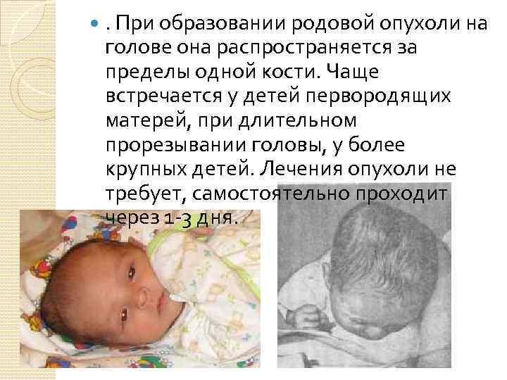 Родовая травма новорожденных: последствия повреждения шейного отдела позвоночника и головы