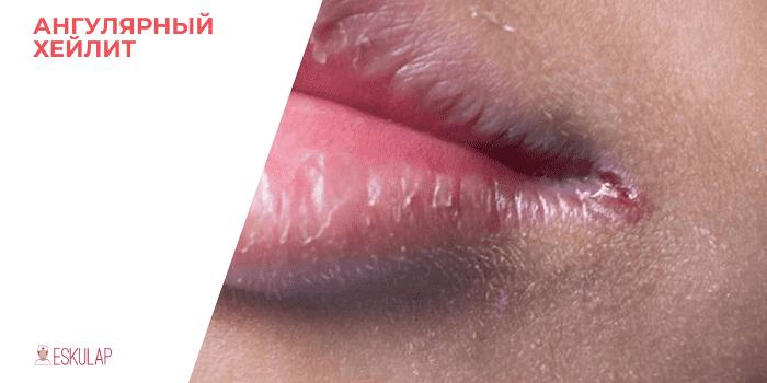 Заеды и трещины в уголках рта у детей: причины и способы лечения губ чем помазать язвочки?
